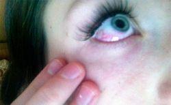 Супер клей попадание в глаза